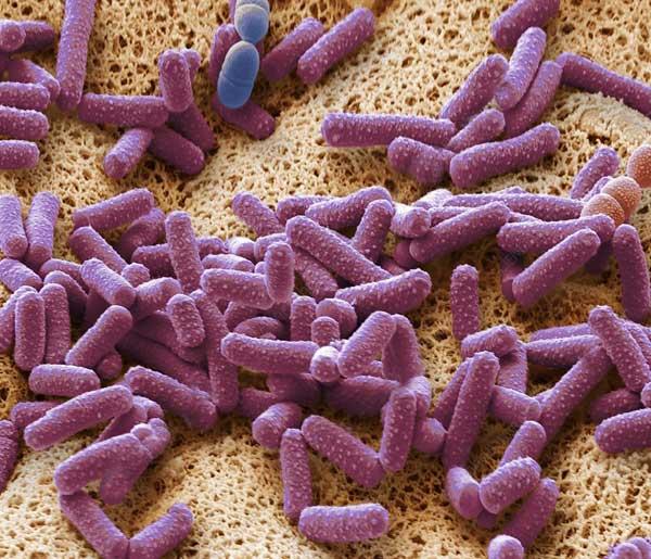 Вирус под микроскопом